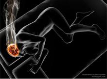 Epilessia: sintomi e trattamenti